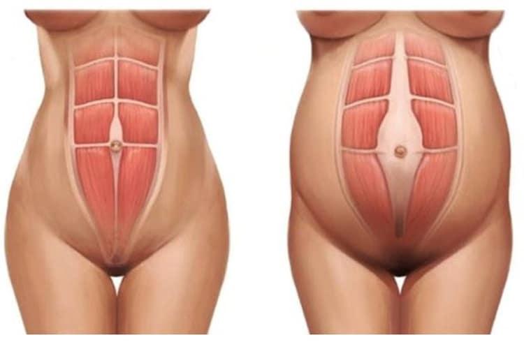 Imagem: Saúde Pélvica: vamos aprender sobre a diástase abdominal!